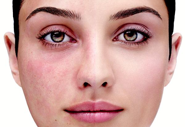 Giãn mao mạch ở mặt gây mất thẩm mỹ cho làn da