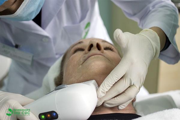 Điều trị da bằng công nghệ Hifu tại Thu Cúc