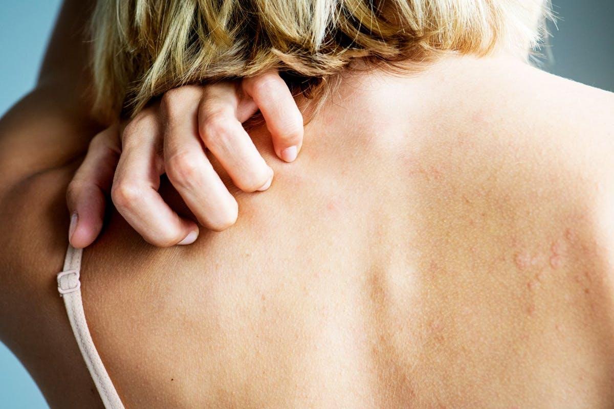 Nếu bạn đã từng gặp phải tình trạng da đặc biệt khô vào mùa đông thì có thể là bạn biết bệnh chàm sẽ như thế nào.