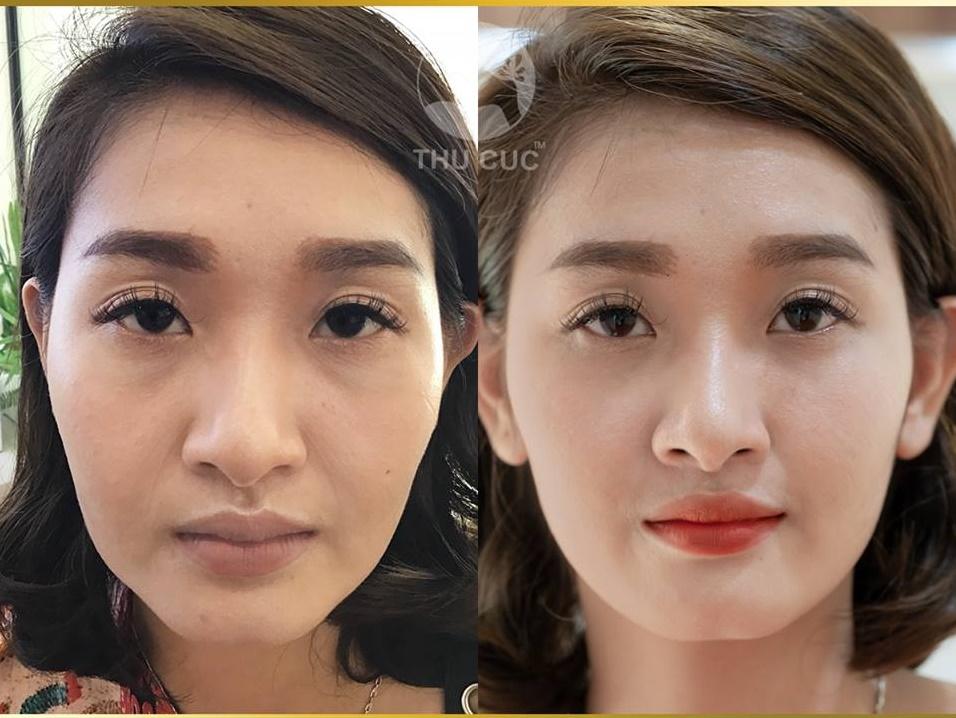 Bạn có thể nhận thấy rõ sự khác biệt của các quý cô sau khi thực hiện công nghệ nâng cơ Hifu 3D tại Thu Cúc chứ?