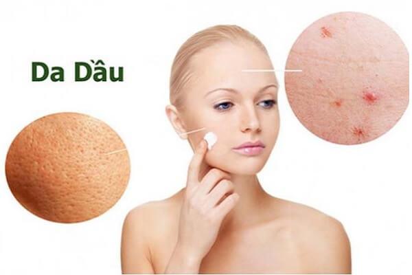 Có nhiều cách chăm sóc da dầu để có làn da mịn màng, không còn lo mụn...