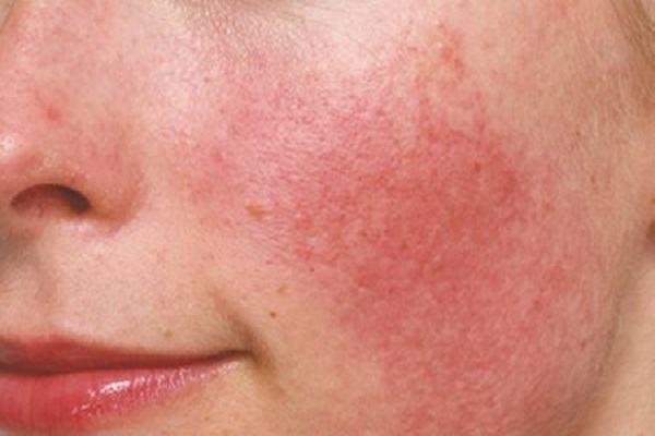 Da mặt mỏng rất dễ bị kích ứng nếu không biết cách chăm sóc