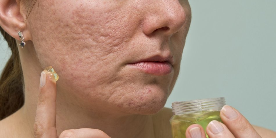 Anthraquinone là một trong những thành phần chính trong nha đam, có thể loại bỏ sẹo và làm mờ vết thâm mụn hiệu quả