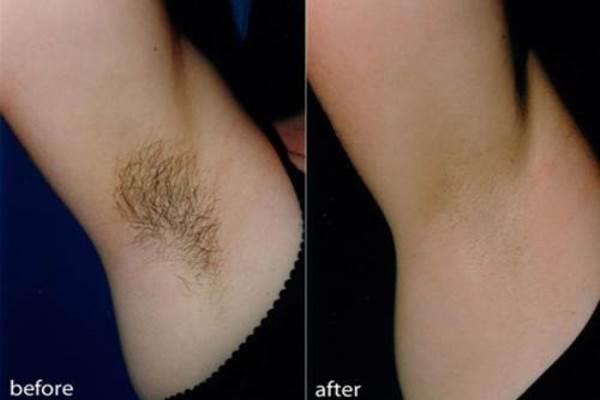 Hình ảnh trước và sau khi triệt lông