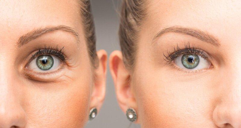 Xóa nhăn vùng mắt bằng dầu dừa có thực sự hiệu quả như mong đợi?
