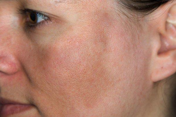 Bạn đã phân biệt được bệnh nám da với các bệnh lý sắc tố da khác chưa?