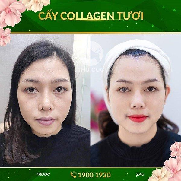 Khách hàng luôn cảm thấy thư thái và hài lòng khi sử dụng dịch vụ cấy collagen tươi tại Thu Cúc.