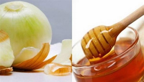 Trị sẹo thâm bằng mật ong kết hợp với hành tây bạn chỉ cần thực hiện đúng công thức