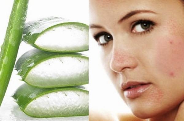 Nha đam là loại nguyên liệu giúp trị thâm mụn hiệu quả trong 1 tuần an toàn, hiệu quả
