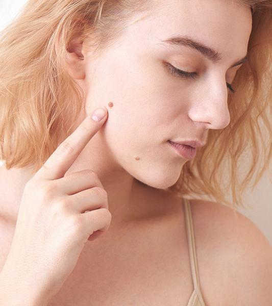 Dù là về thẩm mỹ hay sức khỏe, bạn vẫn cần quan tâm đến cáccách trị nốt ruồi hiệu quả hiện nay.