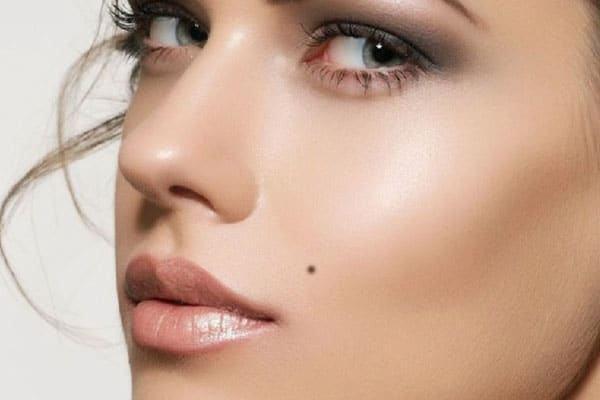 Nốt ruồi đa số lành tính nhưng lại ảnh hưởng không nhỏ đến thẩm mỹ khuôn mặt