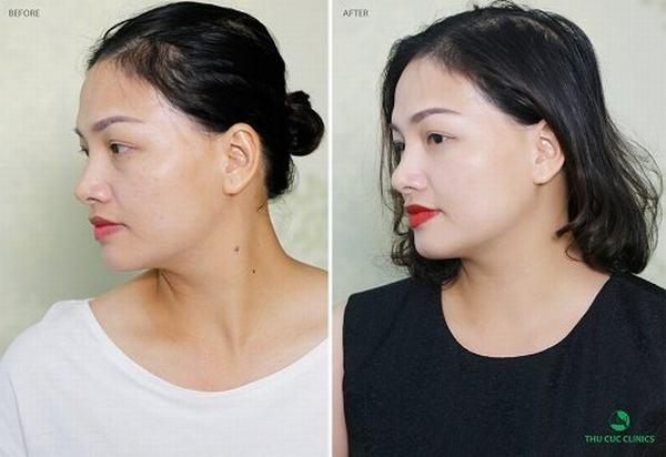 Khách hàng tự tin, xinh đẹp sau khi xóa bỏ nốt ruồi xấu trên mặt