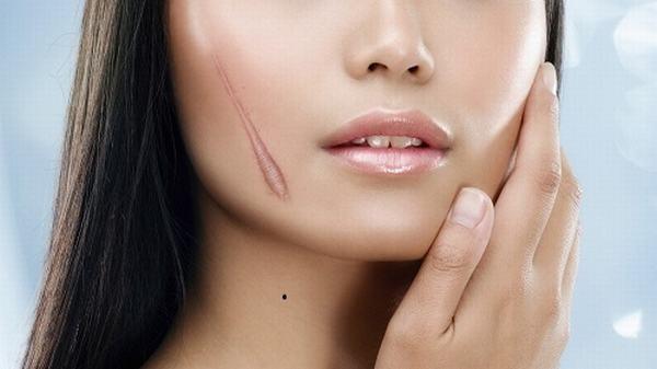Sẹo lồi là khuyết điểm cần chỉnh sửa để không ảnh hưởng đến thẩm mỹ khuôn mặt