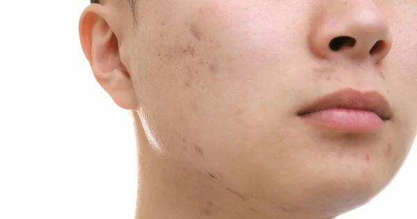 Ai cũng cần phải biết các cách trị sẹo thâm mụn hiệu quả nhất để bảo vệ làn da của mình.
