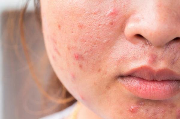 Da bị sẹo mụn đặc biệt nhạy cảm hơn bình thường và càng phải hạn chế tiếp xúc với tia cực tím.