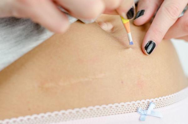 Nhiều người cho biết, họ hay gặp phải tình trạng lông mọc ngược sau khi nhổ lông bằng nhíp.