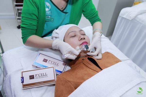 Sau khi điều trị sẹo rỗ khách hàng được chăm sóc da bằng các sản phẩm mỹ phẩm cao cấp