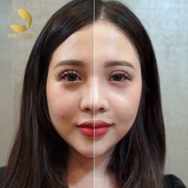 Khách hàng nữ xinh đẹp đã có làn da căng mịn hơn, sáng bóng hơn chỉ sau một liệu trình cấy collagen tươi tại Thu Cúc.