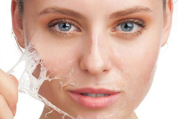 Tùy vào từng loại da mà bạn sẽ có cách dưỡng da tốt nhất với từng sản phẩm lột da hóa chất.
